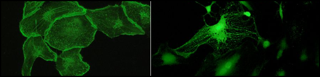 Depolymerized F-actin fibres of the endothelial cells (left) and calcium stained of single endothelial cells (right)