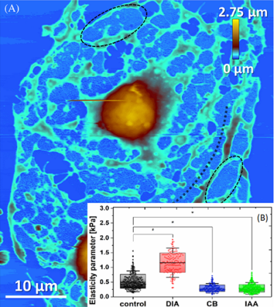 AFM image showing glutaraldehyde-fixed LSECs after 30 minutes treatment with a cytoskeletal-altering drug – cytochalasin B (CB) (21 μM). A) Bulging nucleus area is coloured in brown-orange. B) In the inset the results on elasticity parameter determination by means of AFM-tip nanoindentation in the nucleus area are shown. Changes in elasticity due to various drug treatments (diamide (DIA), 3-Indoleacetic acid (IAA), and CB) are apparent. Extracted from Zapotoczny B. et al. , Traffic, 2019