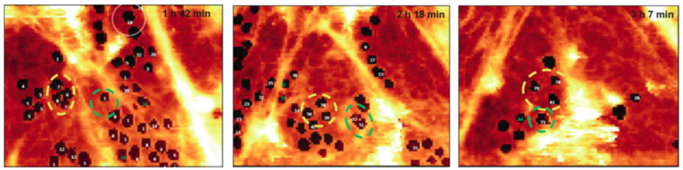 Porous structure of the selected areas of LSEC measured using 4-dimentional (x,y,z,t) AFM after 24 h from seeding on a glass slide. Available from Zapotoczny et al., Hepatology, 2019